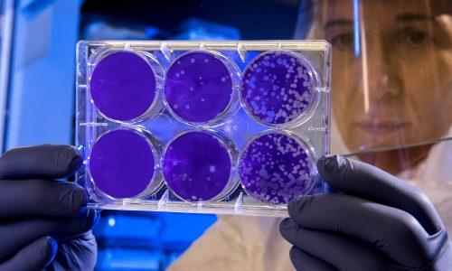 Studie: Keine erneute Ansteckung mit Coronavirus